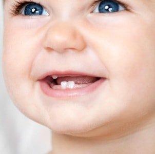 Порядок прорезывания молочных зубов
