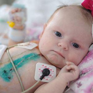 Лечение врожденных пороков сердца