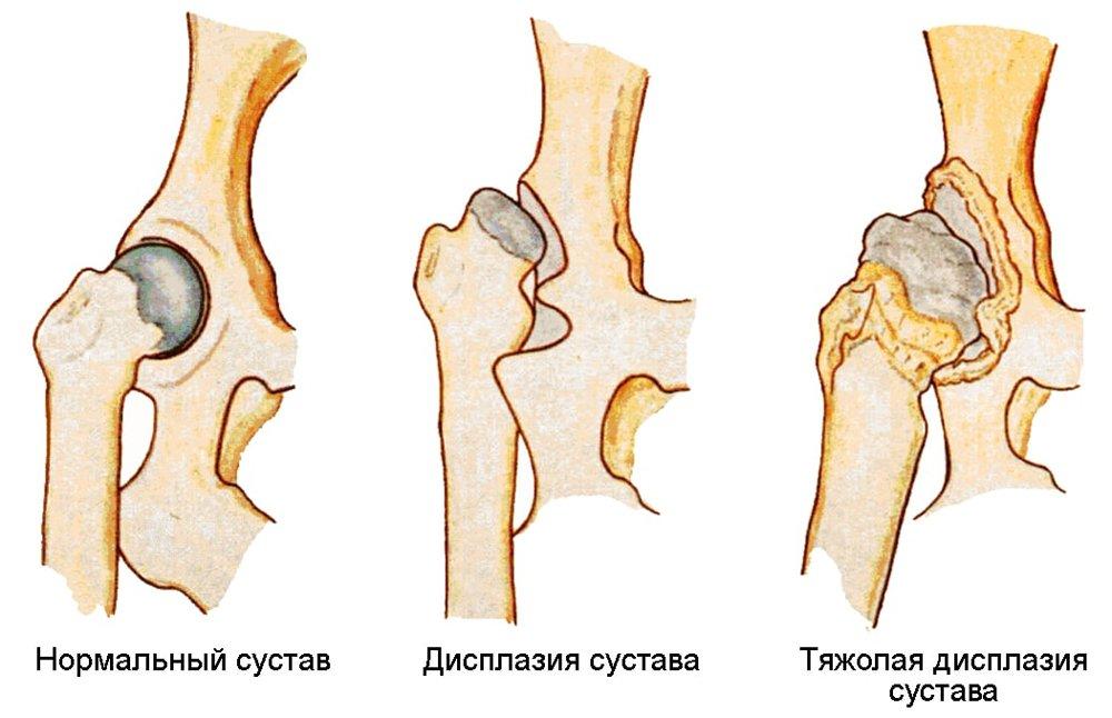 дисплазия тазобедренного сустава у детей после года