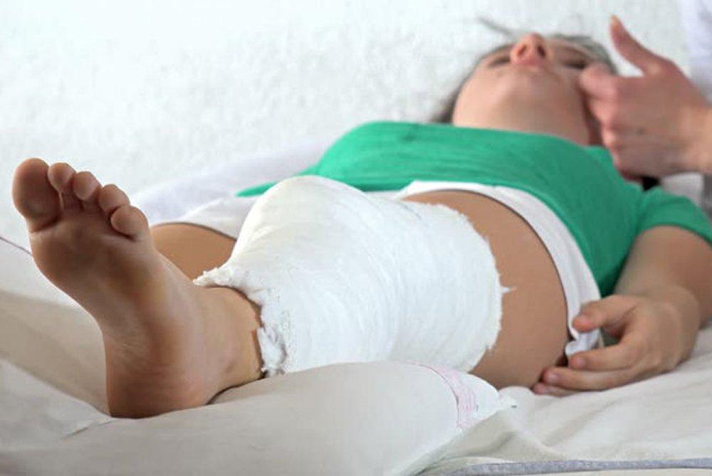 признаки перелома ноги у ребенка