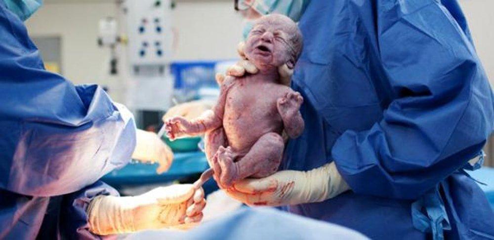 причины омфалита у новорожденных