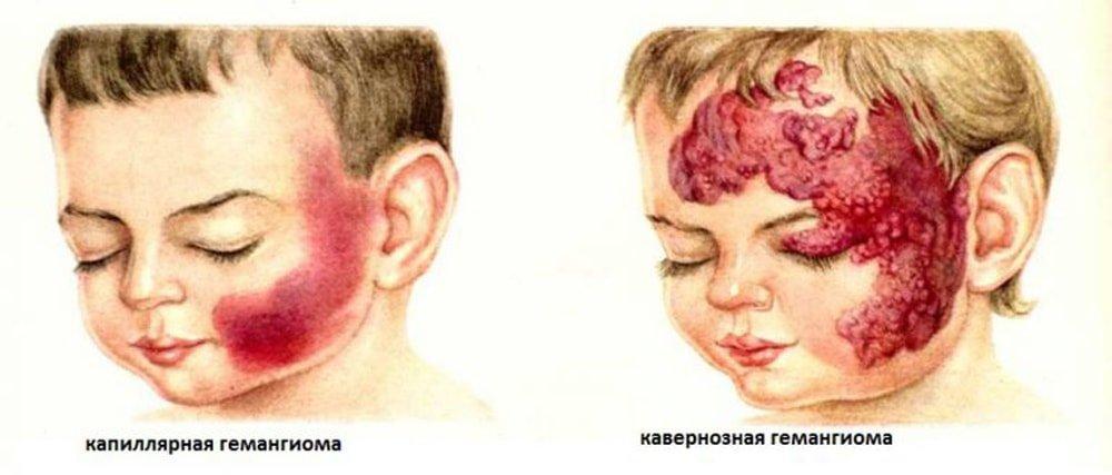 удаление гемангиомы лазером у детей