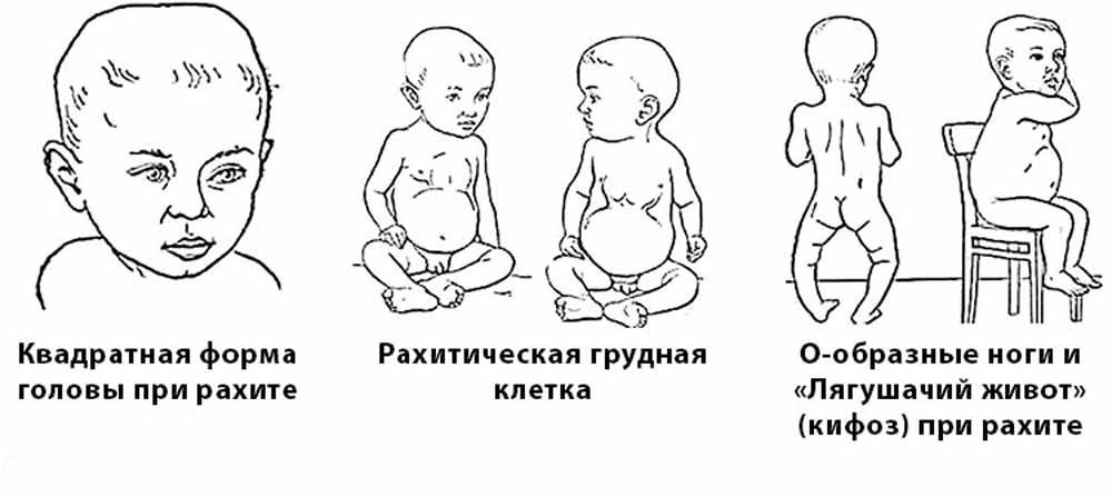 признаки рахита у грудничков 2 месяца