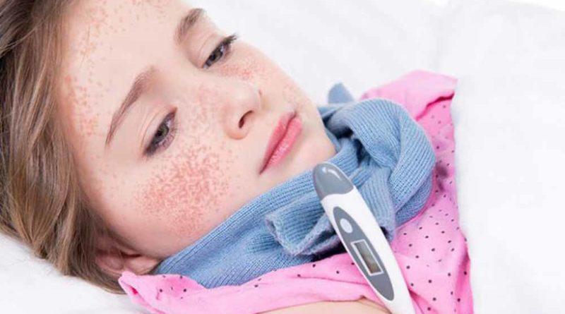 скарлатина у детей фото лечение