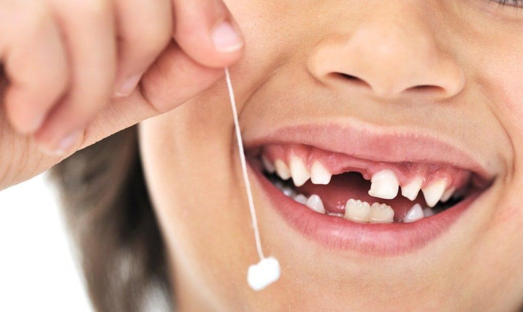 Выпадение зубов у детей
