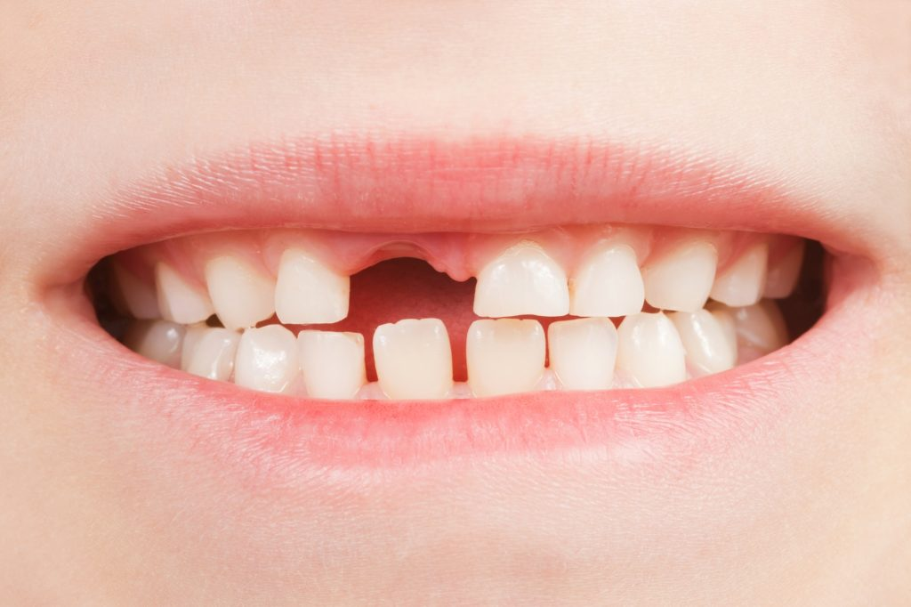 Рекомендации по обращению с молочными зубами