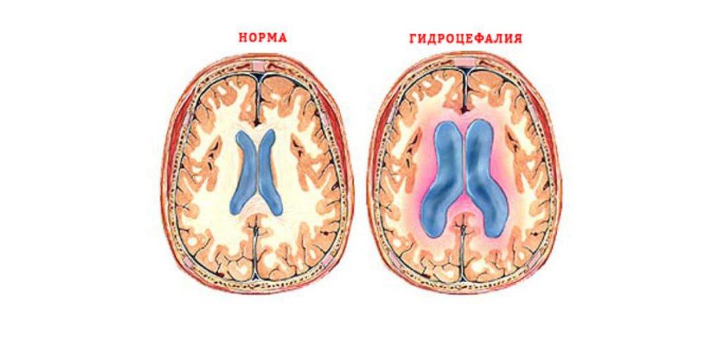 Что такое гидроцефалия