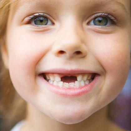 Как удалить шатающийся зуб дома