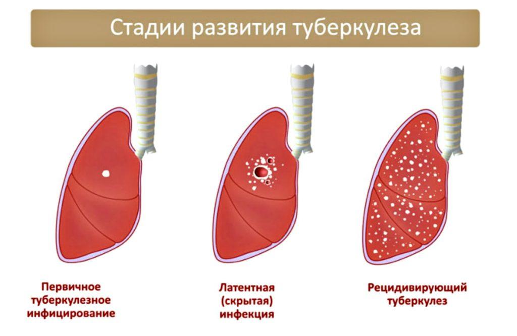 Немного о туберкулезе
