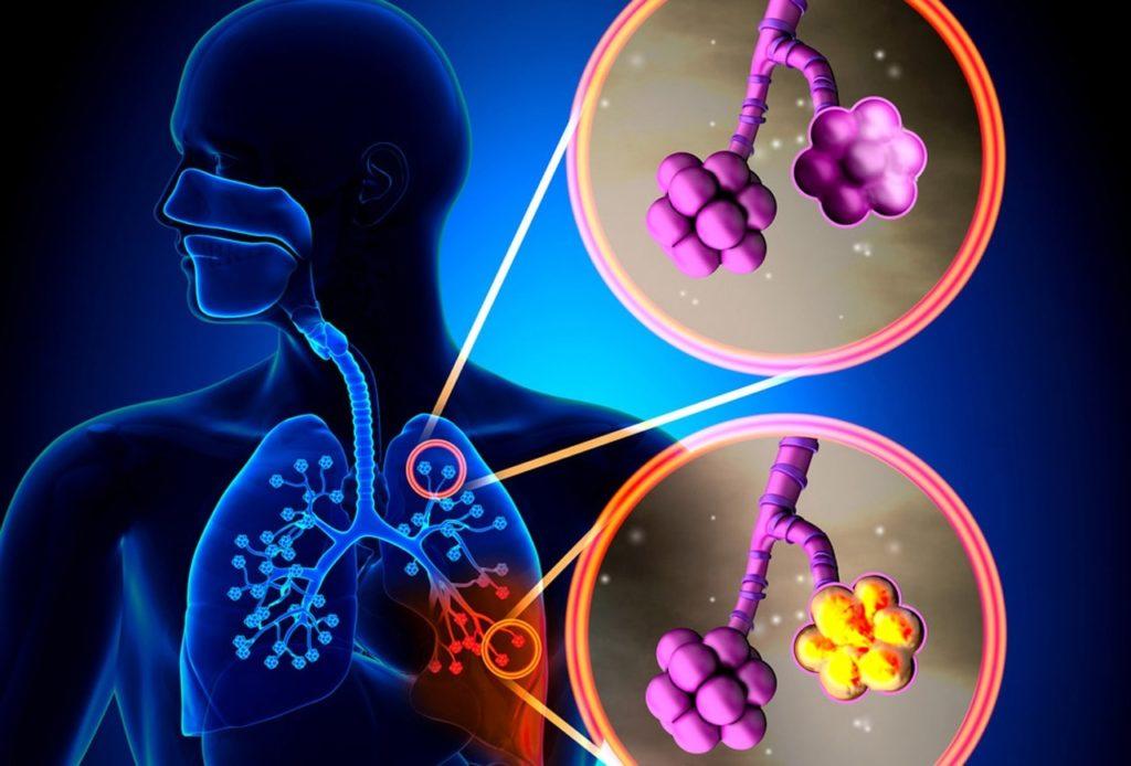 Вирусная пневмония у детей