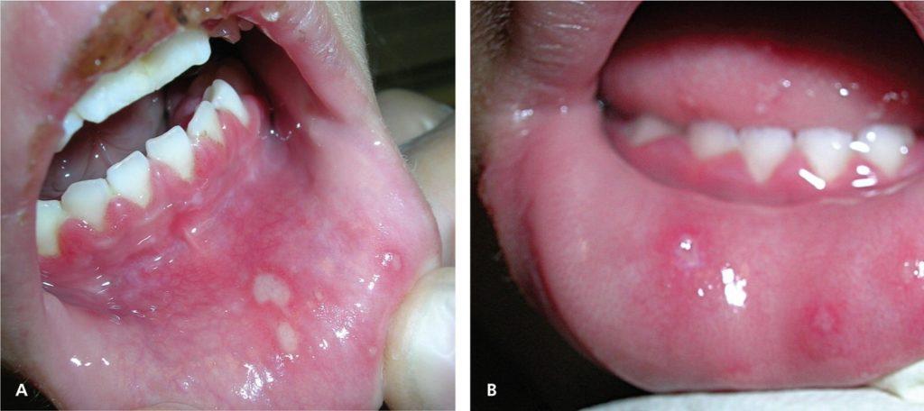 Заболевания полости рта и глотки