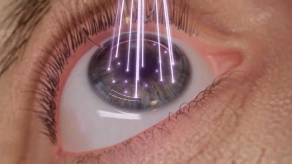 Лазерная коррекция зрения у детей.