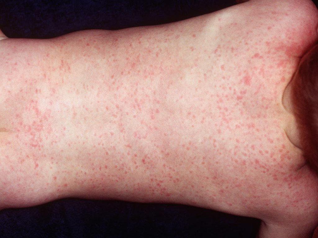Инфекционные причины сыпи