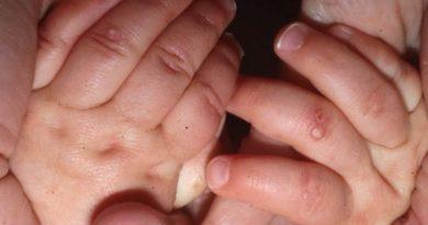 Буллёзный эпидермолиз у ребенка