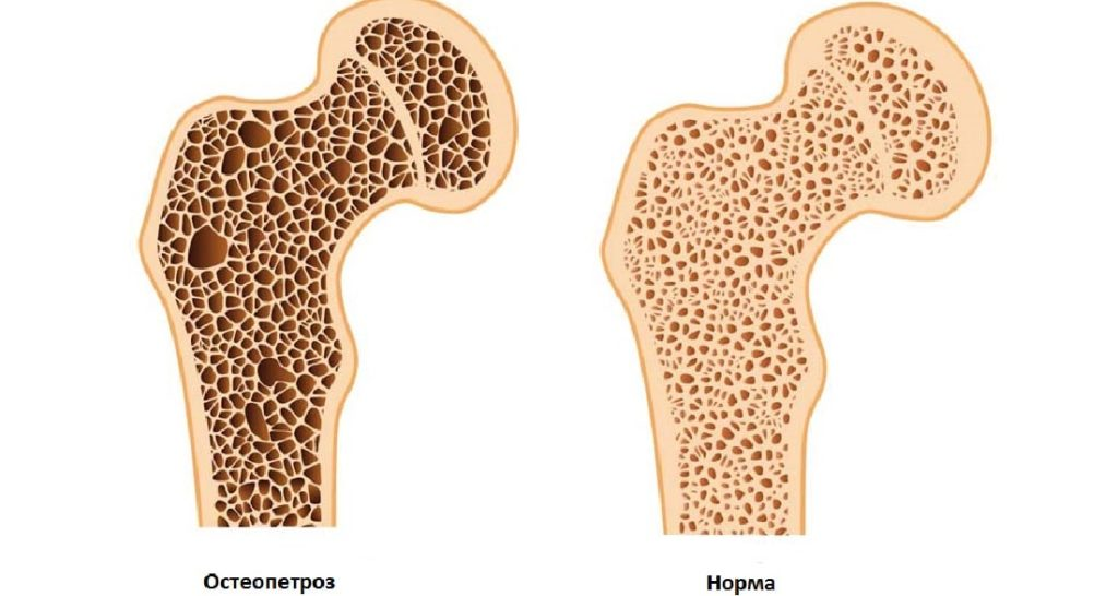 Остеопетроз