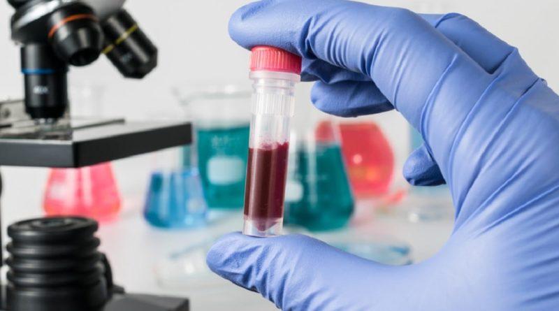 5 основных показаний для определения уровня гематокрита у детей