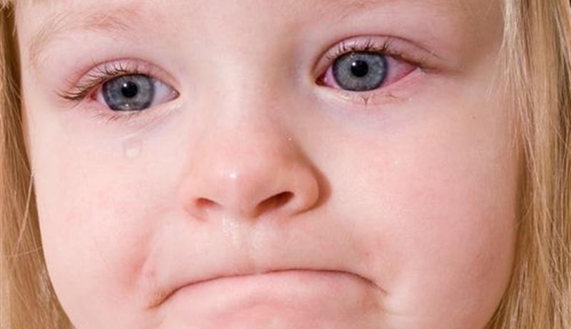 Глазные капли для новорожденных детей