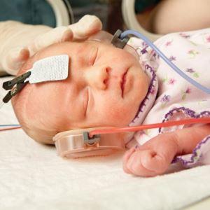 Каким образом проверяют слух у новорожденного