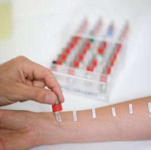 АСИТ — аллергенспецифическая иммунотерапия