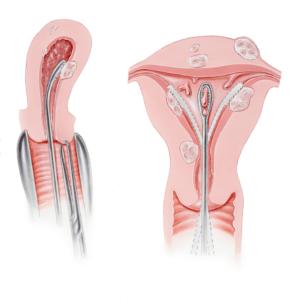 Внутриматочные синехии (синдром Ашермана)