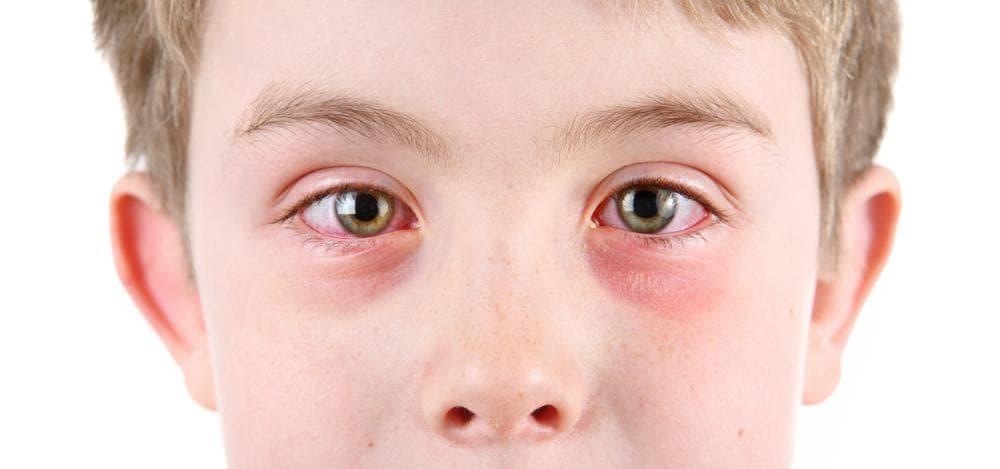 Механизм появления аллергического конъюнктивита