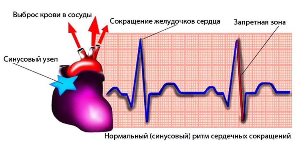 сердцебиение сердца у новорожденных