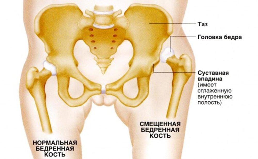 признаки дисплазии тазобедренных суставов у детей