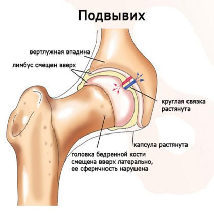 дисплазия тазобедренных суставов у детей фото