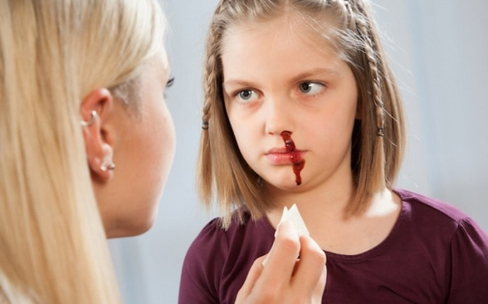 Причины носового кровотечения у детей