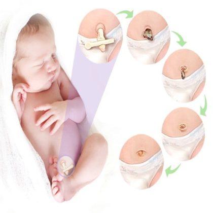 омфалит у новорожденных фото