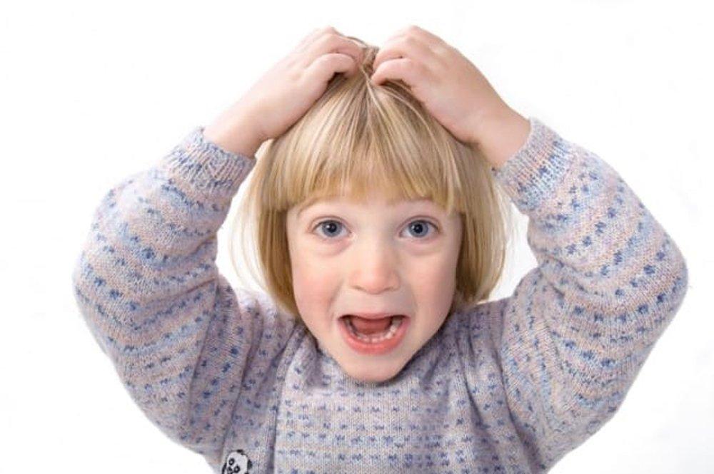Как выглядят гниды у ребенка на волосах?