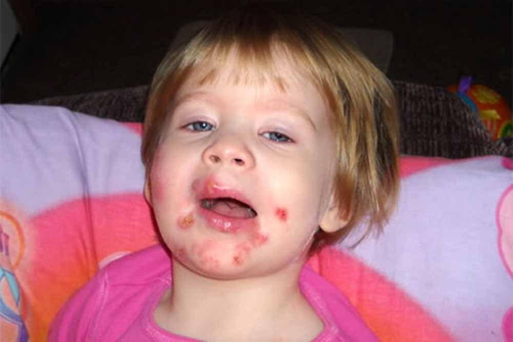 стрептодермия на лице у ребенка лечение