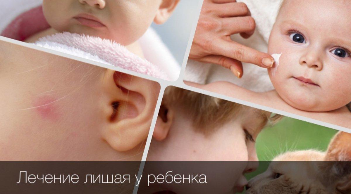 Лишай у детей - причины, симптомы, диагностика и лечение