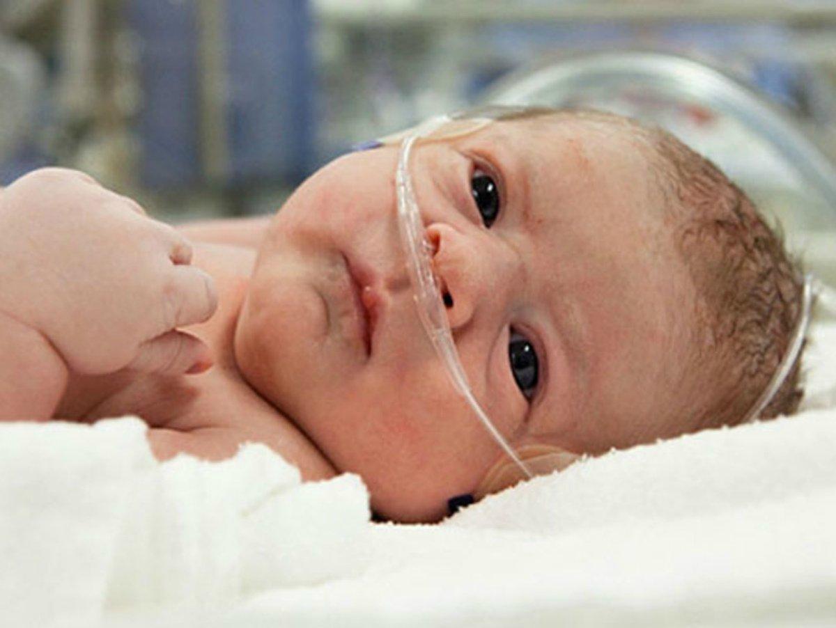 Асфиксия головного мозга у новорожденных