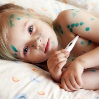 Прививка от ветрянки детям