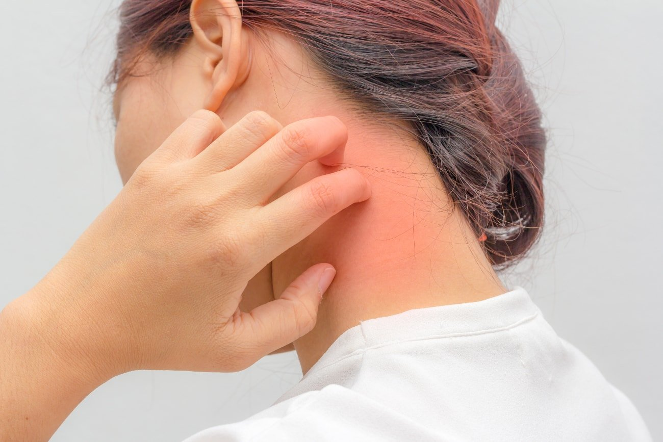 Синдром сывороточной болезни