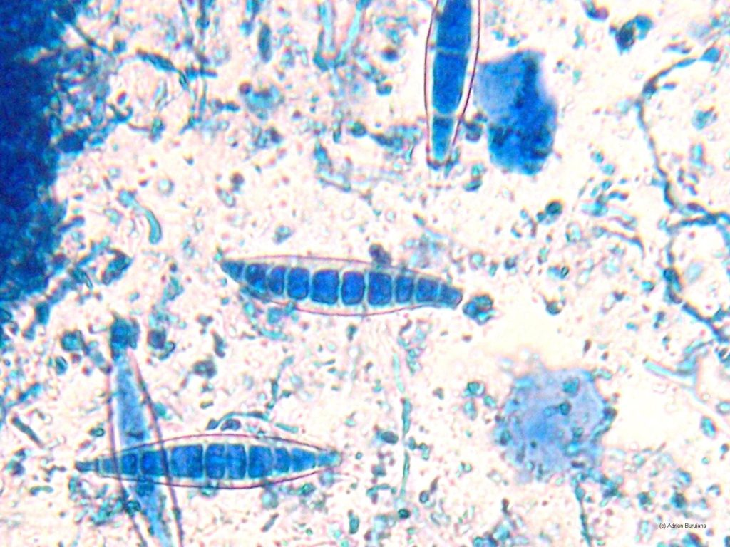 Микроспория у детей
