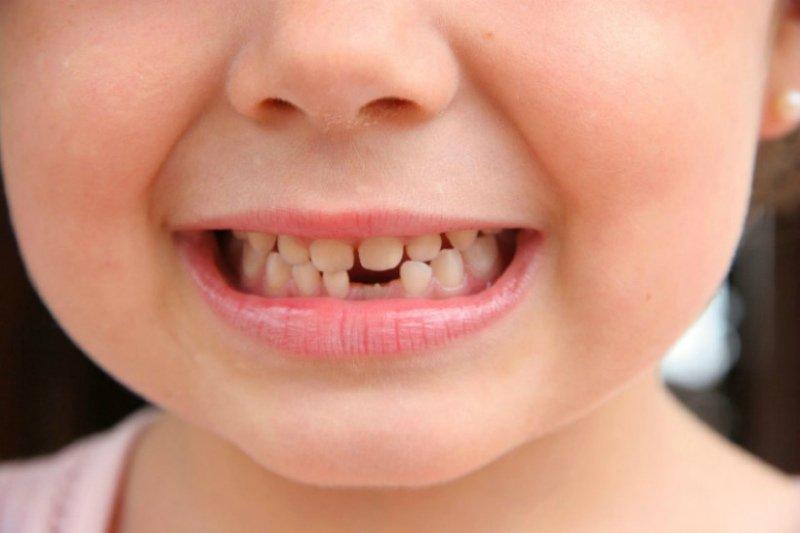 Проблемы при смене молочных зубов