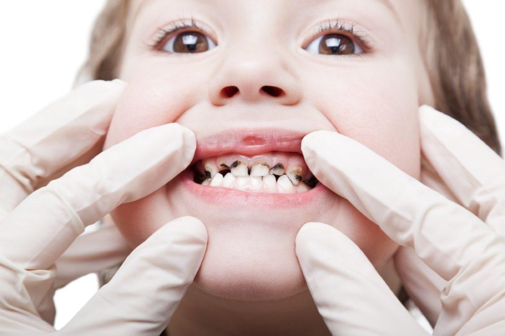 Коренные зубы у детей порядок замены