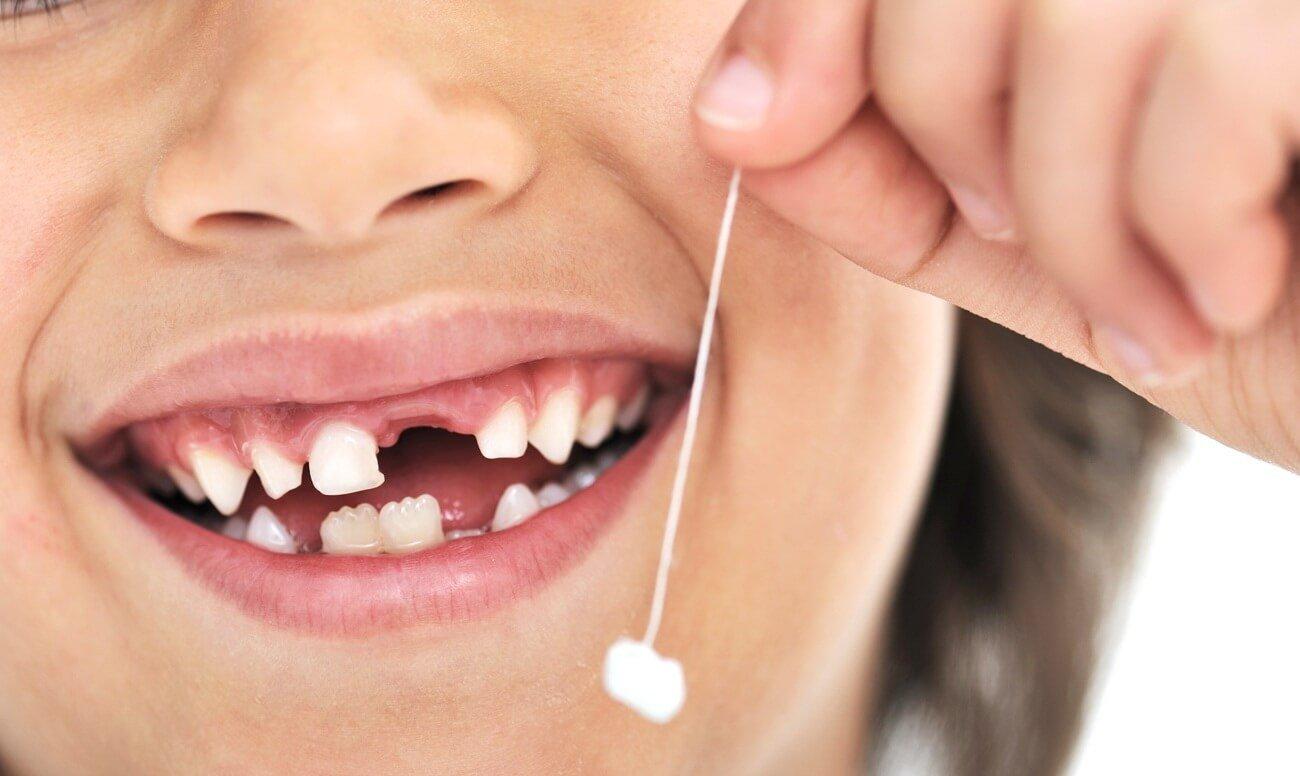 В каком возрасте у детей выпадают молочные зубы