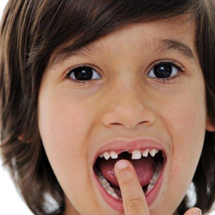 Когда и почему начинают выпадать молочные зубки?