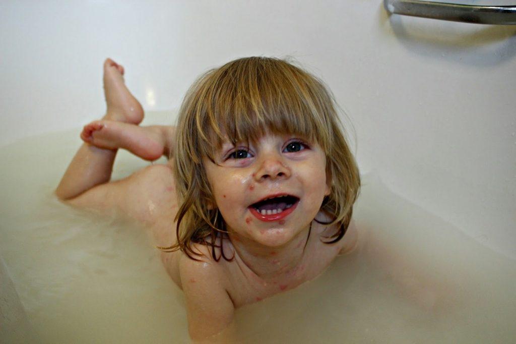 Можно ли купать ребёнка при ветрянке?