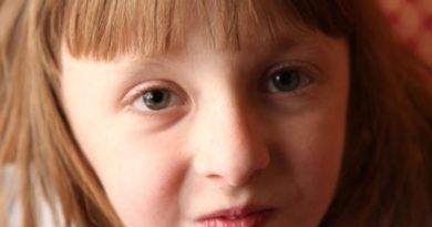 Синдром Шерешевского-Тернераой диагностике и правильно выполненном лечении пациентки имеют шанс адаптироваться в социуме. Источник: http://tvojajbolit.ru/pediatriya/sindrom-shereshevskogo-tyornera-prichinyi-simptomyi-diagnostika-i-sposobyi-lecheniya/