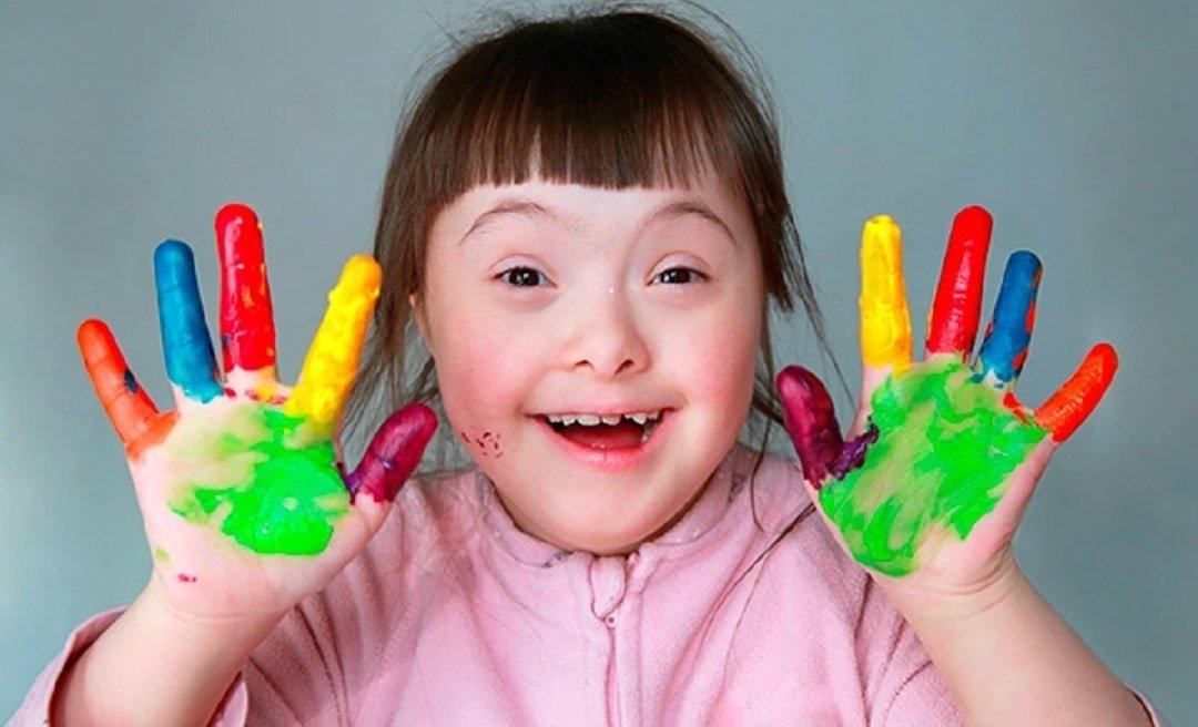 Частота рождения детей с синдромом дауна