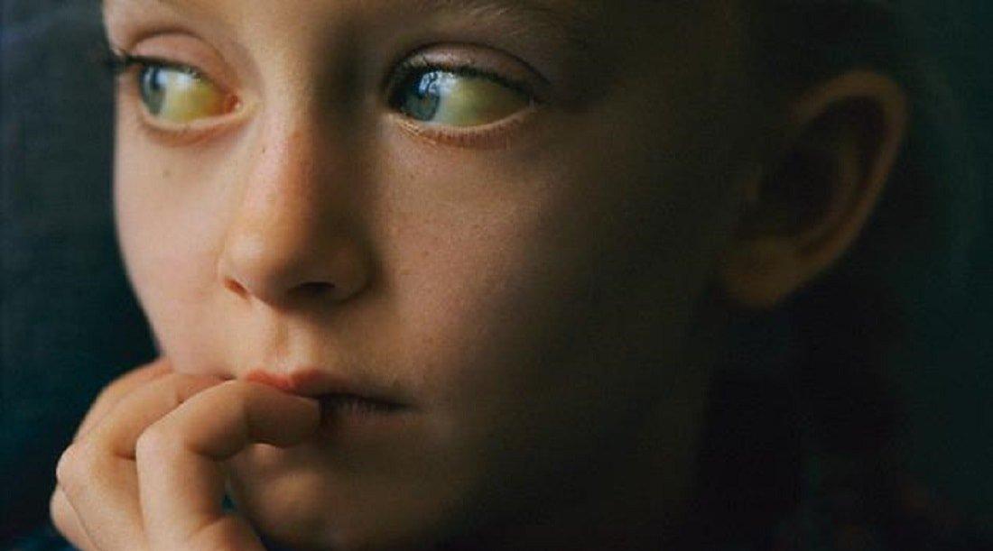 Синдром Жильбера лечение причины симптомы признаки