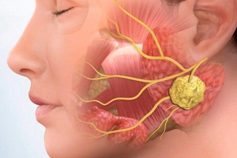 Механизм развития воспаления в лимфоузле