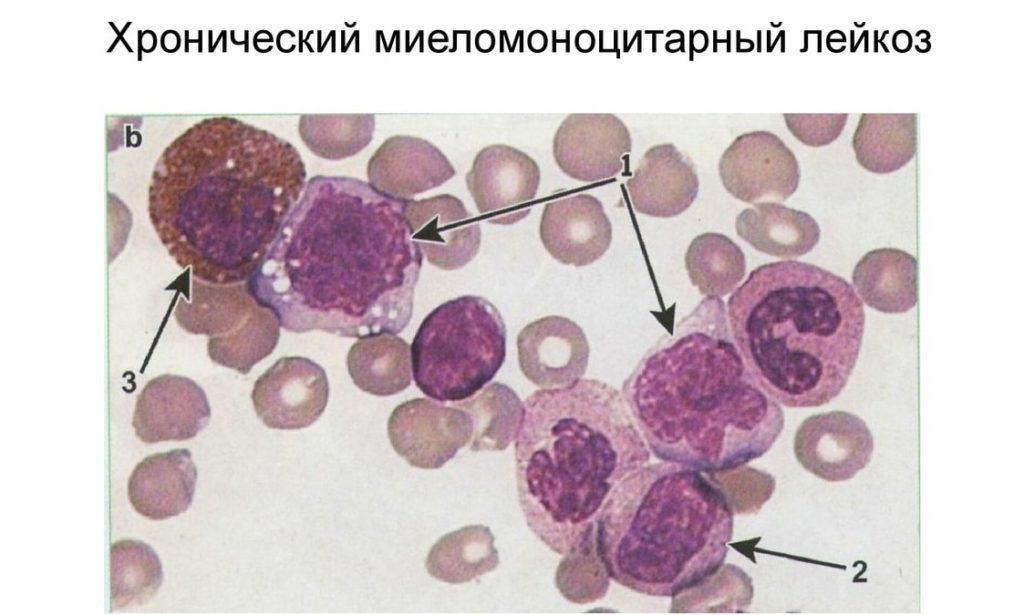 Хронический миелоидный лейкоз