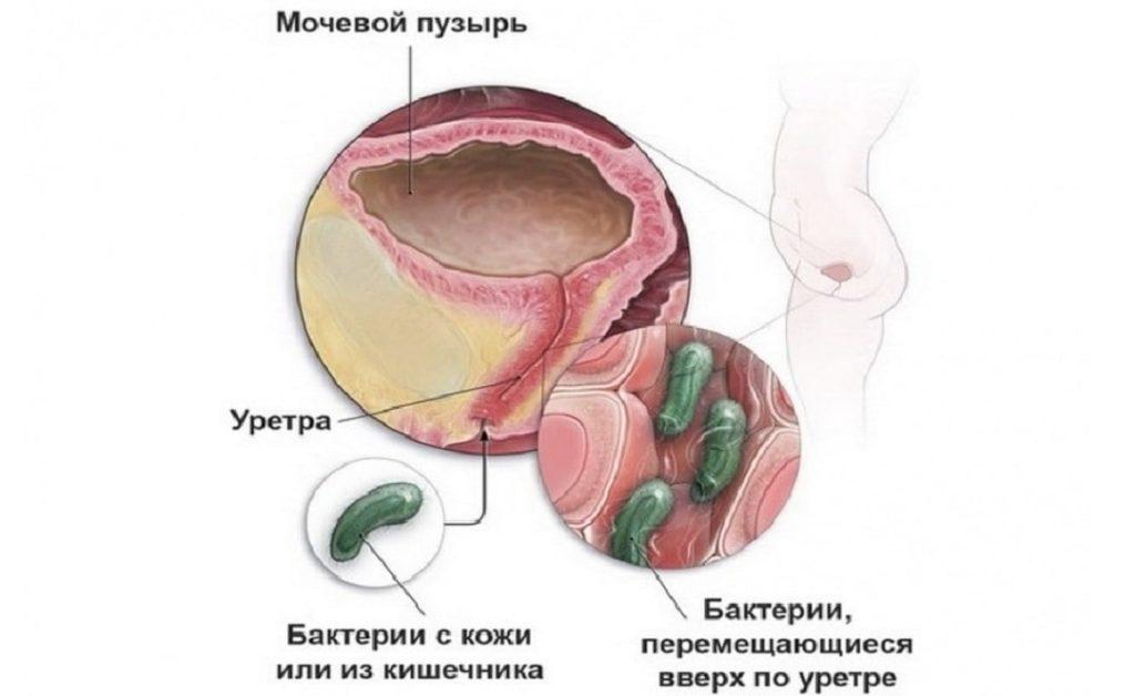 Причины повышения лейкоцитов