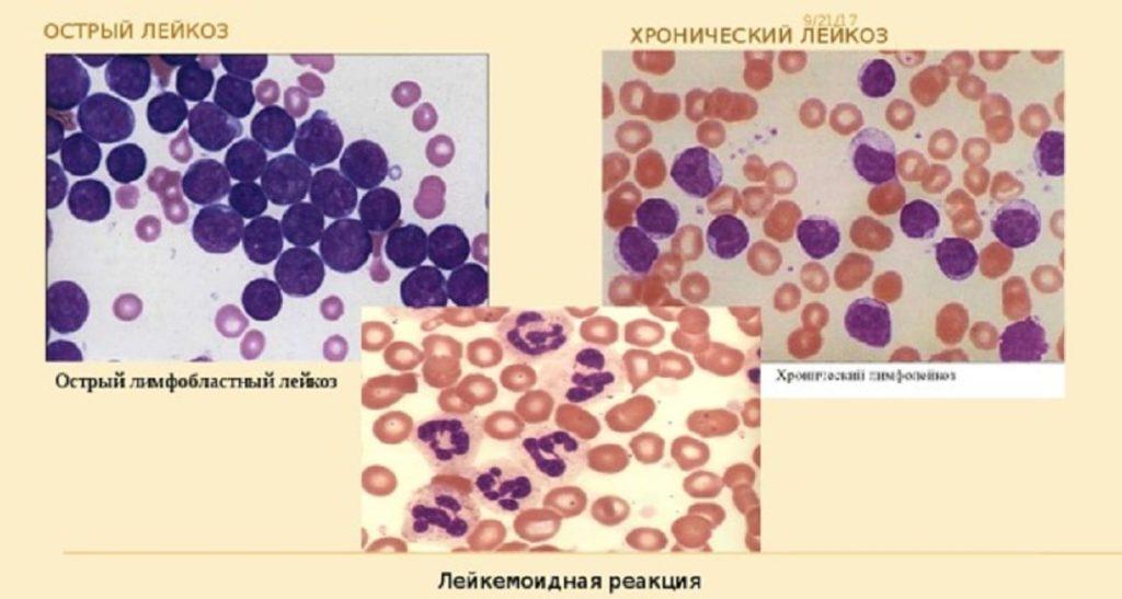Лейкемоидная реакция