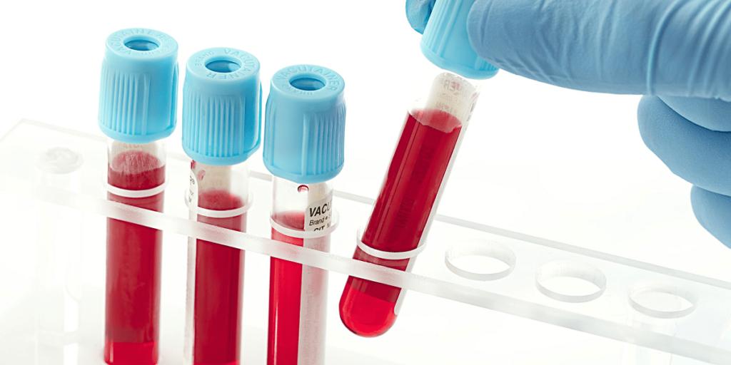 Общеклинический анализ крови